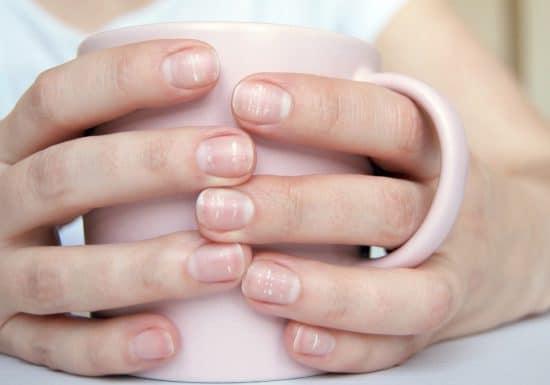 Białe plamki na paznokciach – czy to powód do niepokoju?